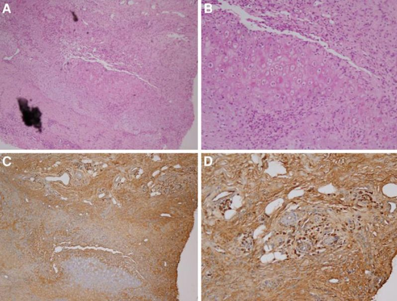 IgG4-Related Disease   Annual Review of Pathology ...