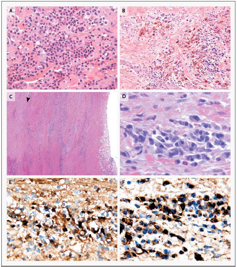 文献(IgG4関連疾患): Nephroma2a