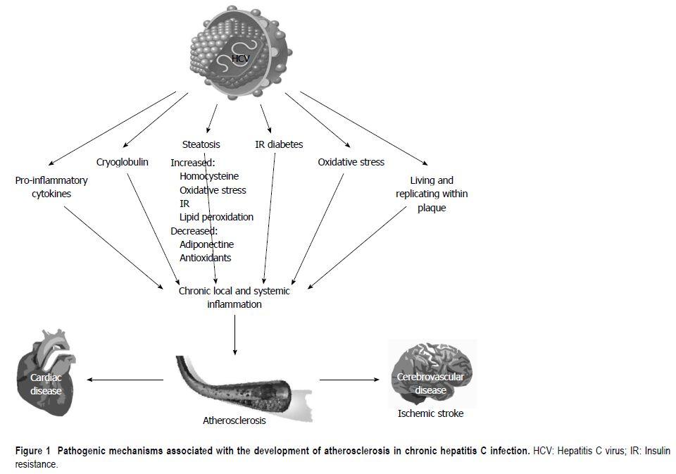 Hcvatherosclerosis
